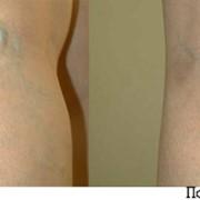 Флебологическое лечение в Астане, флебология фото