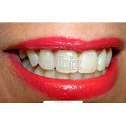 Реставрация зубов с помощью современных фотополимерных пломбировочных материалов фото