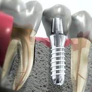 Имплантация. Имплантация зубов Киев. Имплантация зубов: Киев, цены, стоимость. Имплантация зубов (цены,киев). Имплантация зубов Киев. Качественные зубные импланты. Стоматология имплантация зубов фото
