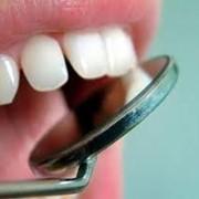 Консультации по лечению зубов Харьков фото