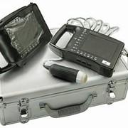 Портативный УЗИ-сканер MS Multiscan фото