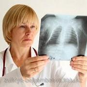 Лечение остеоартроза фото