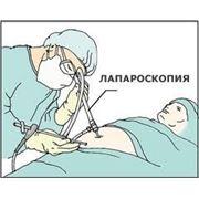 Эндоскопическая хирургия фото