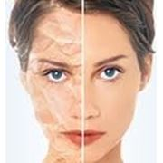 Гигиеническая чистка лица с АНА-кислотами фото