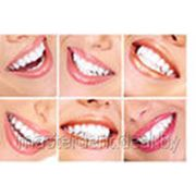 Эстетическое реконструирование зубов фото