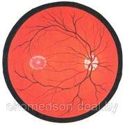 Осмотр глазного дна с фундус линзой