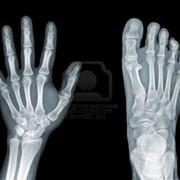 Переработка отработаного фиксажа,рентгенпленок фото