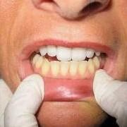 Стоматологический кабинет ТРИО.Отбеливание зубов. фото