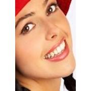 Устранение внешних видимых дефектов зубов фото