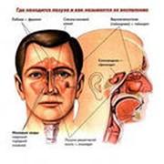 МРТ воздушных пазух черепа фото