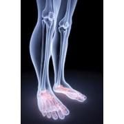 Спиральная компьютерная томография голеностопного сустава и стопы фото