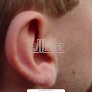 Уменьшение ушей фото