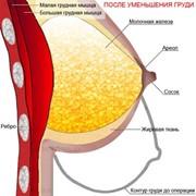Маммопластика, увеличение - протезирование фото