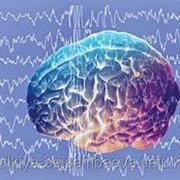 Электроэнцефалография рутинная фото