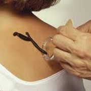 Гирудотерапия фото