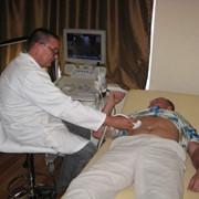 Дуплексное ангиосканирование фото