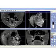 3-х мерная томография фото