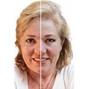 Термо лифтинг - аппаратная без операционное омоложение лица. фото