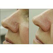 Удаление папилом бородавокневусоврасширенных сосудов кожи лица фото