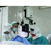 Глазная хирургия в Кишиневе фото