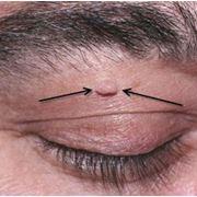 Удаление новообразований глаза фото