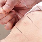 Тибетские методы лечения диагностика фото