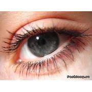 Антиглаукоматозные операции фистулизирующие при первичной глаукоме в Кишиневе фото