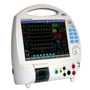 Pеанимационно-хирургический монитор ЮМ-300I анест. (ЭКГ, ЧСС, SPO2, НИАД, ЧД, Т-ра, ИД, Мультигаз, специальная защита от влияния коагулятора ) фото