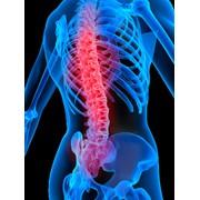 Лечение любых форм остеохондроза в клинике доктора Трофименко с потрясающими результатами!!! фото