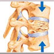 Реабилитация после компрессионных переломов позвоночника фото