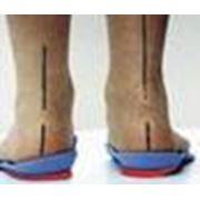 Изготовление индивидуальных ортопедических стелек фото