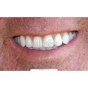Протезирование зубов бюгельное фото