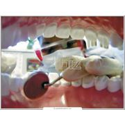 Хирургическая стоматология фото