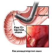 Эзофагогастродуоденоскопия (осмотр пищевода, желудка и двенадцатиперстной кишки) фото