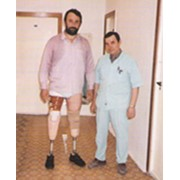 Протезирование нижней конечности (ампутация выше колена) фото