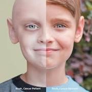 Лечение рака в Онкоцентре Турции фото