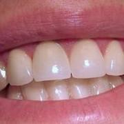 Химическое отбеливание зубов фото