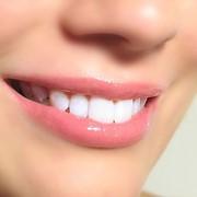 Фторирование зубов в Кишиневе фото