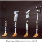 Изготовление протезов нижних,верхних конечностей фото