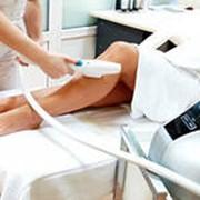 Фотоэпиляция ноги до колен в алматы (для женщин) фото