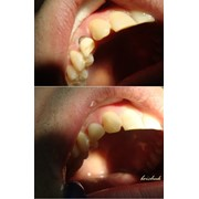 Лечение зубов. фото