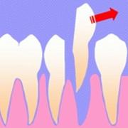 Удаление зубов фото