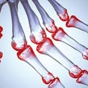 Лечение ревматоидного артрита ЦЕНА фото
