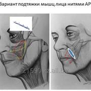Подтяжка лица нитями APTOS фото