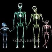 Утилизируем отработанный фиксаж, рентген пленки! фото