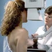 Диагностика заболеваний молочной железы фото