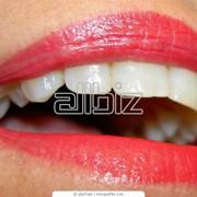 Фторирование зубов фото