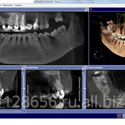 Компьютерная томография челюстно-лицевой области фото