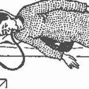 Зондирование желудка, Введение или смена желудочного зонда фото