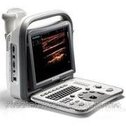 Аппарат УЗИ SonoScape A6 фото